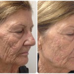 Platelet-Rich Plasma Procedure May Improve Facial Appearance