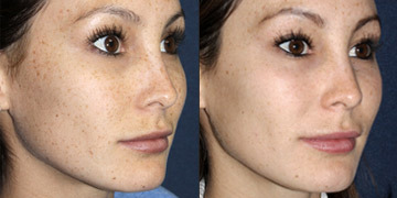 IPL especially in treatment of skin pigmentation, sun damage, and thread veins