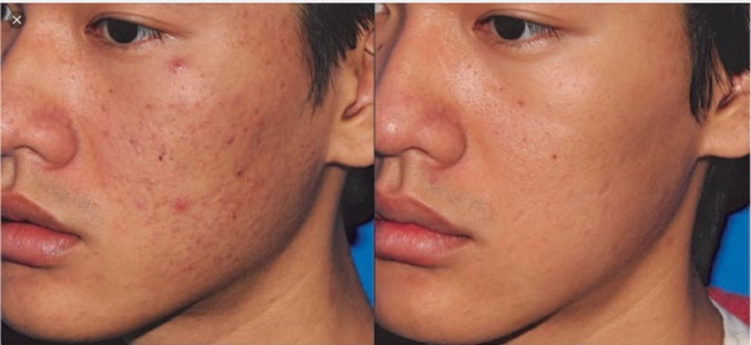 Skin needling as a treatment for acne scarring