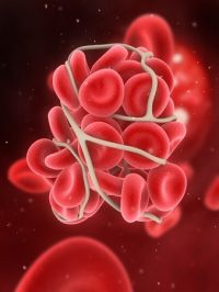 Older transfused blood as good as fresh (INFORM)