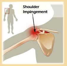 آسیب تاندونی روتاتور کاف یا گیرافتادگی شانه (Shoulder Impingement)