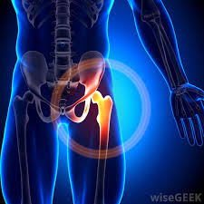 گیرافتادگی مفصل رانی-لگنی (Hip or Femoroacetabular Impingement)